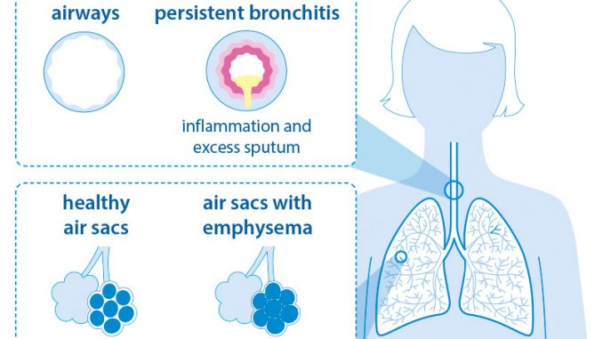 COPD bronchitis emphysema graphic