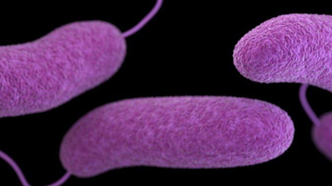 Cholera; Introduction, Signs Symptoms, Diagnosis, Prevention, Control