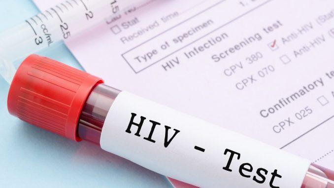 Mandatory premarital HIV testing, can it be accepted?? [pdf]